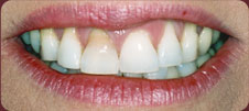 plaque covered teeth before