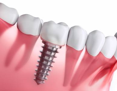 How to brush your teeth after dental implant