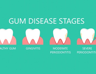 The various stages of gum disease