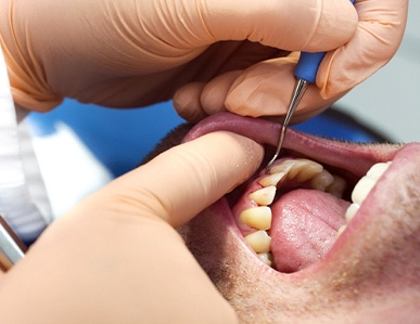 A male patient undergoing scaling and root planing to clear away plaque and harmful bacteria beneath the gum line