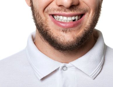 man smiling one missing tooth