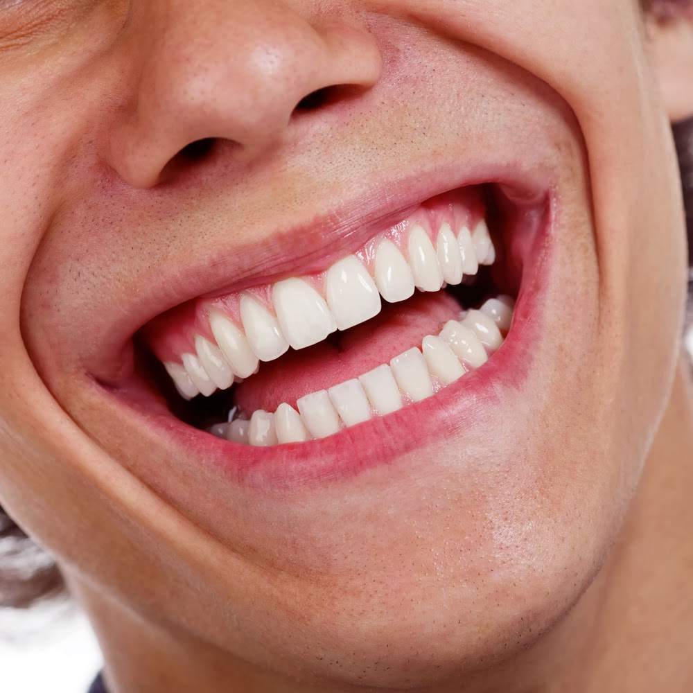 Bring your smile back to life with porcelain veneers from hill do you often find yourself actively avoiding showing off your smile are imperfections and signs of damage keeping you from fully enjoying a few laughs with solutioingenieria Image collections