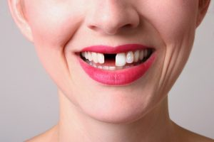 Dental implants in Superior consists of 3 parts.