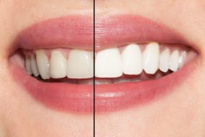Image of the results of teeth whitening.