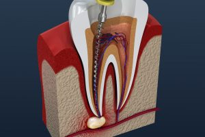 3D image of a root canal procedure