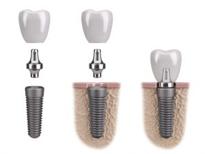 Implant, abutment, and crown