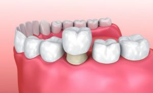 3D image of a dental crown on a lower tooth